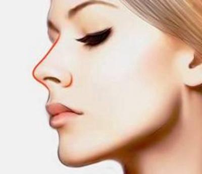烟台鹏爱整形玻尿酸隆鼻好不好 安全快捷效果立竿见影