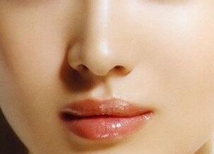 自体软骨隆鼻取自哪里 会不会留疤