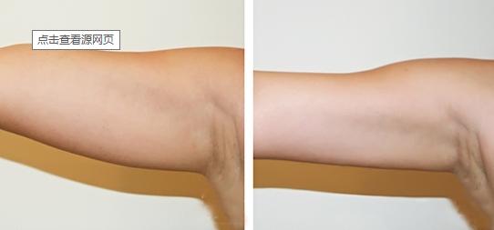 深圳吉美瑞丽斯整形医院手臂吸脂很专业 让你拥有仟仟手臂
