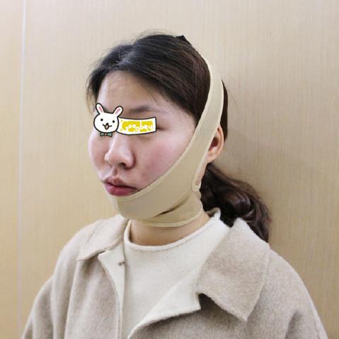 长沙小姐姐面部吸脂手术恢复分享 效果超棒