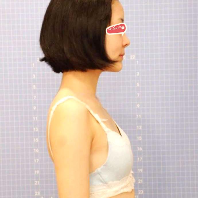 成都小姐姐假体隆胸手术恢复分享 恢复后效果非常好