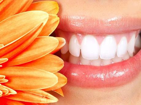 上海悦康口腔门诊部烤瓷牙术后如何护理 都有哪些优势