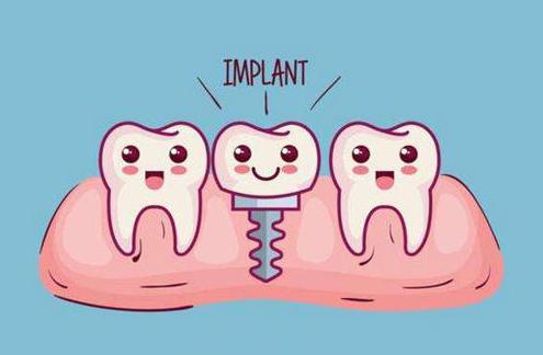 种植牙是怎么做的 广州医学院口腔医院效果怎么样