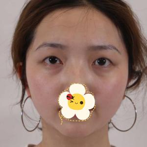 济宁星坊整形医院全切双眼皮案例 术后拥有迷人电眼