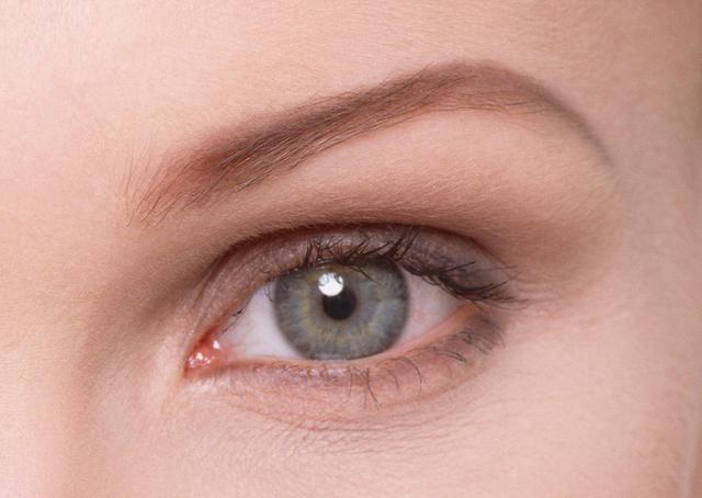 埋线的双眼皮危害 西安叶子医整形医院很专业