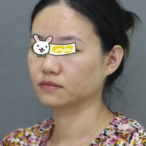 深圳鹏爱整形医院黄金微针祛痘案例 让您找回自信