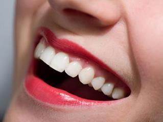 北京口腔医院种植牙的过程 多久能恢复