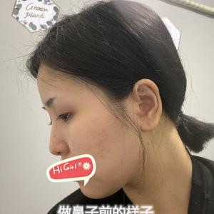 哈尔滨超龙整形医院自体肋软骨隆鼻案例 效果惊人手感软