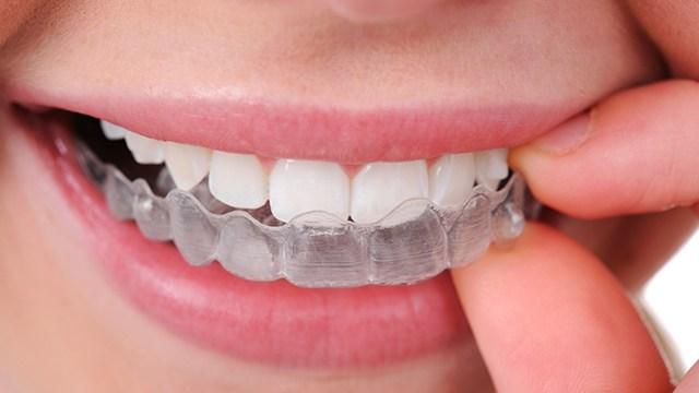 西安百思美口腔整形医院牙齿矫正的类型