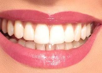 种植牙需要多久 西安莲湖圣贝口腔整形医院正规吗
