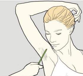 益阳激光腋脱毛费用 需要治疗几次