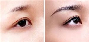 种植眉毛和纹眉毛有何区别 成都思发源植眉价格表