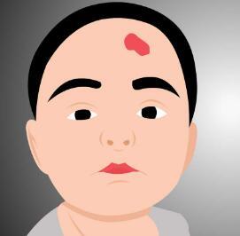 广州激光去胎记多少钱 去胎记效果怎么样