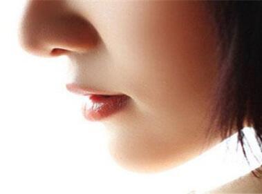 鼻小柱延长用什么材料好 南宁美丽之星机构鼻小柱延长价格