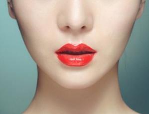 宁波市医院整形外科厚唇改薄需要多少钱 术后多久能恢复
