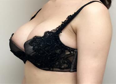 乳房矫正手术安全吗 南京艾得拉诊所乳房下垂整形要多少钱