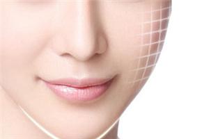 温州医疗整形医院脸部激光去痣多少钱 会不会留疤