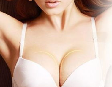 修复隆胸失败手术直问李方奇 北京艾玛整形医院正规吗