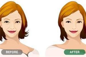 面部除皱的方法哪种好 北京可思美激光除皱 塑莹润紧致美肤