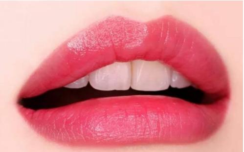 南方医科大学附属美容科玻尿酸丰唇价格 手术安全吗