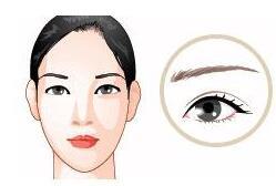 眉毛种植需多少钱 深圳青逸植发医院靠谱吗