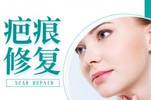 上海长征医院激光科祛疤靠谱吗 多久才能恢复呢