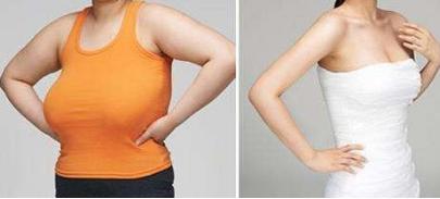 广州胸部整形哪家好  巨乳缩小术的三大优势缔造和谐之美