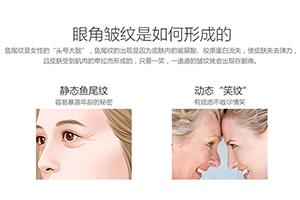 上海名格整形医院有激光科吗 激光去鱼尾纹多少钱