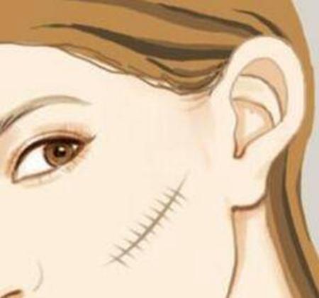中山大学附属第五美容整形激光祛疤优势 有几种方法
