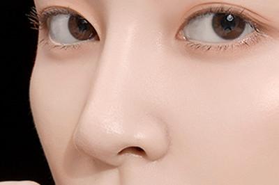 珠海华澳整形医院邓强假体隆鼻术 让五官更加精致美观