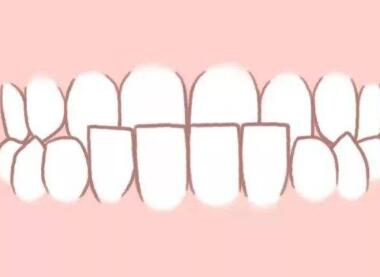 襄阳号尔口腔门诊部牙齿矫正会影响脸型吗 费用是多少
