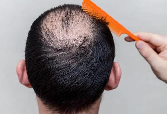 西安精锐植发医院专业植发 头发种植后多久见效