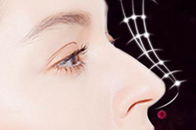 自体软骨隆鼻安全吗 深圳恒丽整形医院塑造自然鼻子