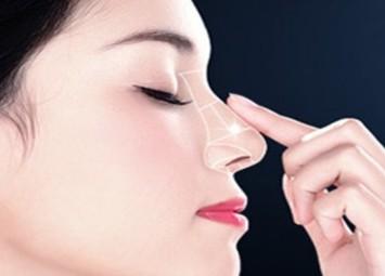 深圳鹏程医院整形鼻尖整形 让鼻子变得挺翘自然