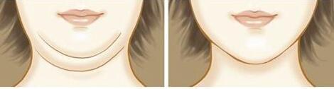 面部吸脂后多久能消肿 合肥第二人民医院瘦脸小脸不是梦