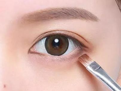切开双眼皮哪里做的 杭州时光整形医院无需预约 直接就诊