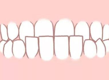 汉中小白象口腔门诊部未成年人可以做种植牙吗