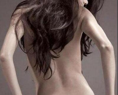 益阳德尔美客门诊部背部吸脂会反弹吗 背部吸脂会留疤吗?