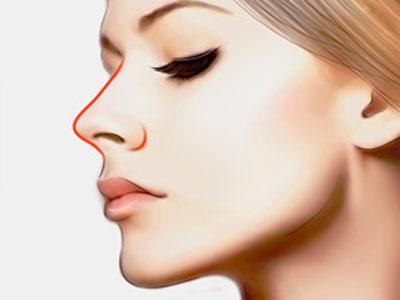 自体软骨隆鼻深圳蒳美迩整形医院为您打造自然告别美鼻