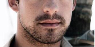 胡须种植特点 长沙科发源植发医院整形李兴东彰显男人魅力
