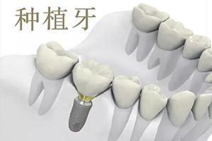 种植牙能用一辈子吗 武汉牙达人口腔医院为您打造好牙