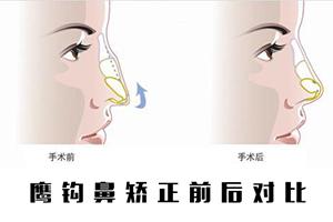 鹰钩鼻矫正的方法有哪些 九江风华整形医院矫正手术多少钱