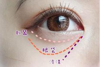 激光去眼袋多少钱 爱莱美医疗整形激光去眼袋靠谱吗