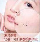 祛痣的方法 南京微颜医疗美容靠谱吗