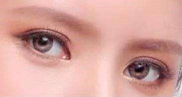 切开双眼皮怎么做 湘潭华雅整形医院切出灵动双眼