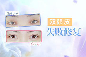 郑州割双眼皮医生哪位出名 张丹阳双眼皮修复需要多少钱