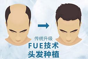 在北京植发的价格是多少 中德毛发移植医院在哪里