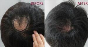 头上有疤痕 做疤痕植发效果好吗 价格多少啊