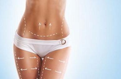 吸脂瘦腰腹 无需复吸 在线讲解腰腹吸脂能瘦多少斤
