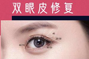 双眼皮修复要多少钱 2021价格公布 价格透明